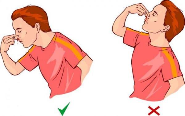Кровотечение из носа (сильное, частое, обильное): причины и лечение