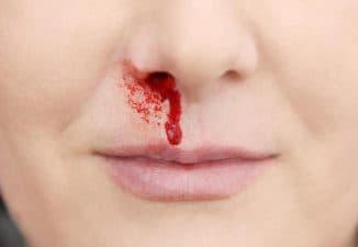 как вызвать кровь из носа без боли в домашних условиях