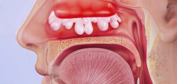 Заложенность носоглотки без насморка причины и лечение