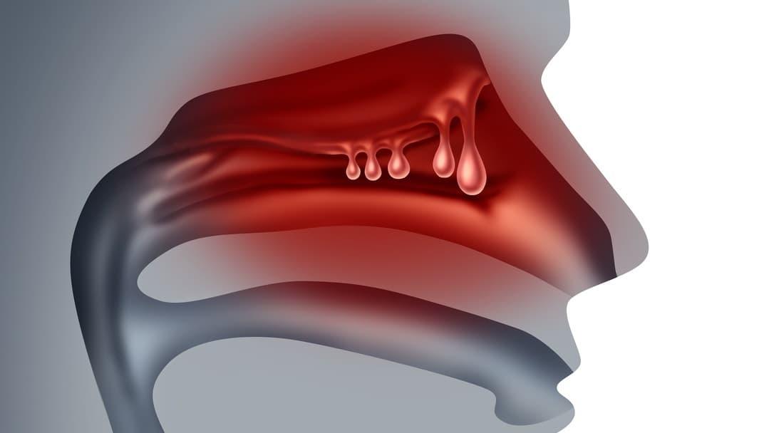 Полипы в гайморовых пазухах - лечение и симптомы заболевания