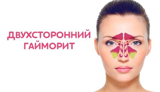 Гайморит по МКБ-10 – формы и особенности заболевания