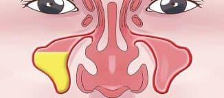 Гнойный гайморит и как избавиться от этой болезни.