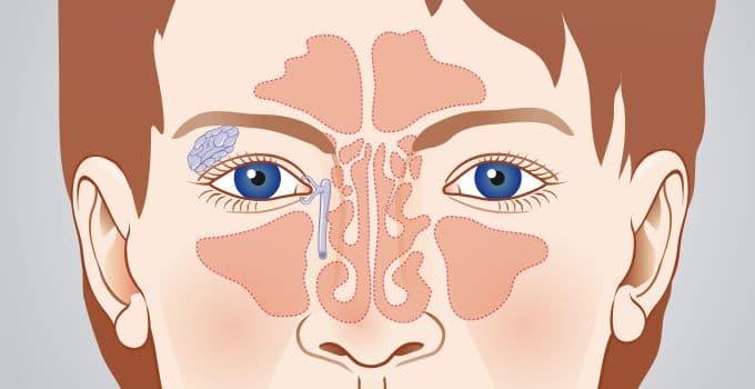 Пазухи носа анатомия фото