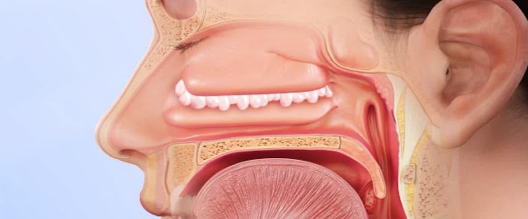Полипы в гайморовой пазухе: симптомы и лечение
