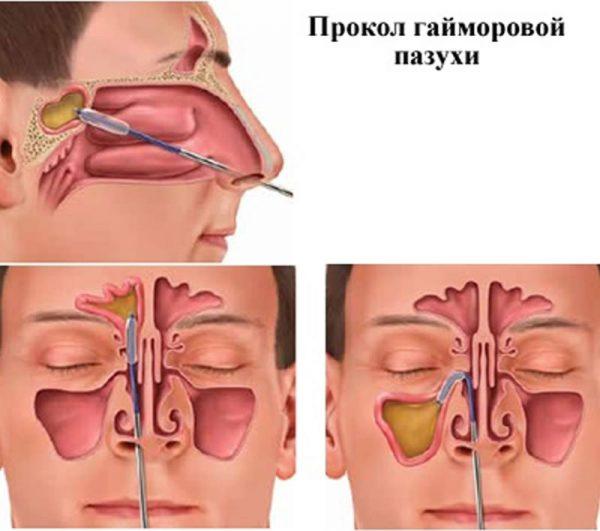 Промывать нос при гайморите сколько раз в день